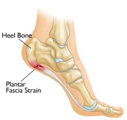 Plantar fasciitis description and location of injury
